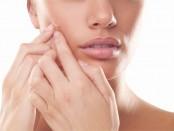acne-mitos-y-realidades