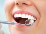 desmanchado-dental