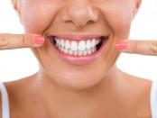 estetica-y-sensibilidad-dental