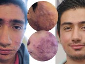 la-voz-acne