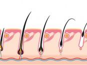 transpel-alopecia-androgenetica