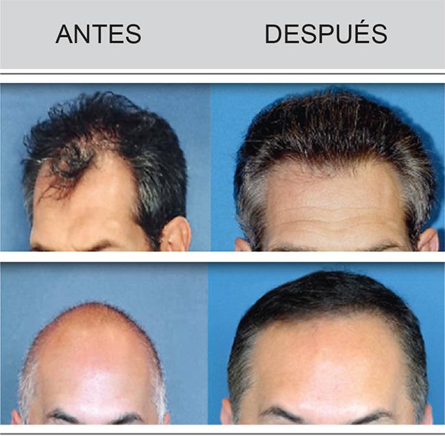 transpel-alopecia-androgenetica-2