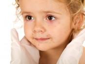 enfermedades-exantemáticas
