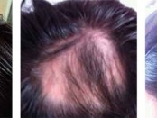 la-voz-alopecia