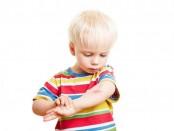 Enfermedades más frecuentes de la piel en la infancia