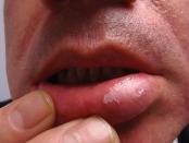 Lesiones blancas de la cavidad oral
