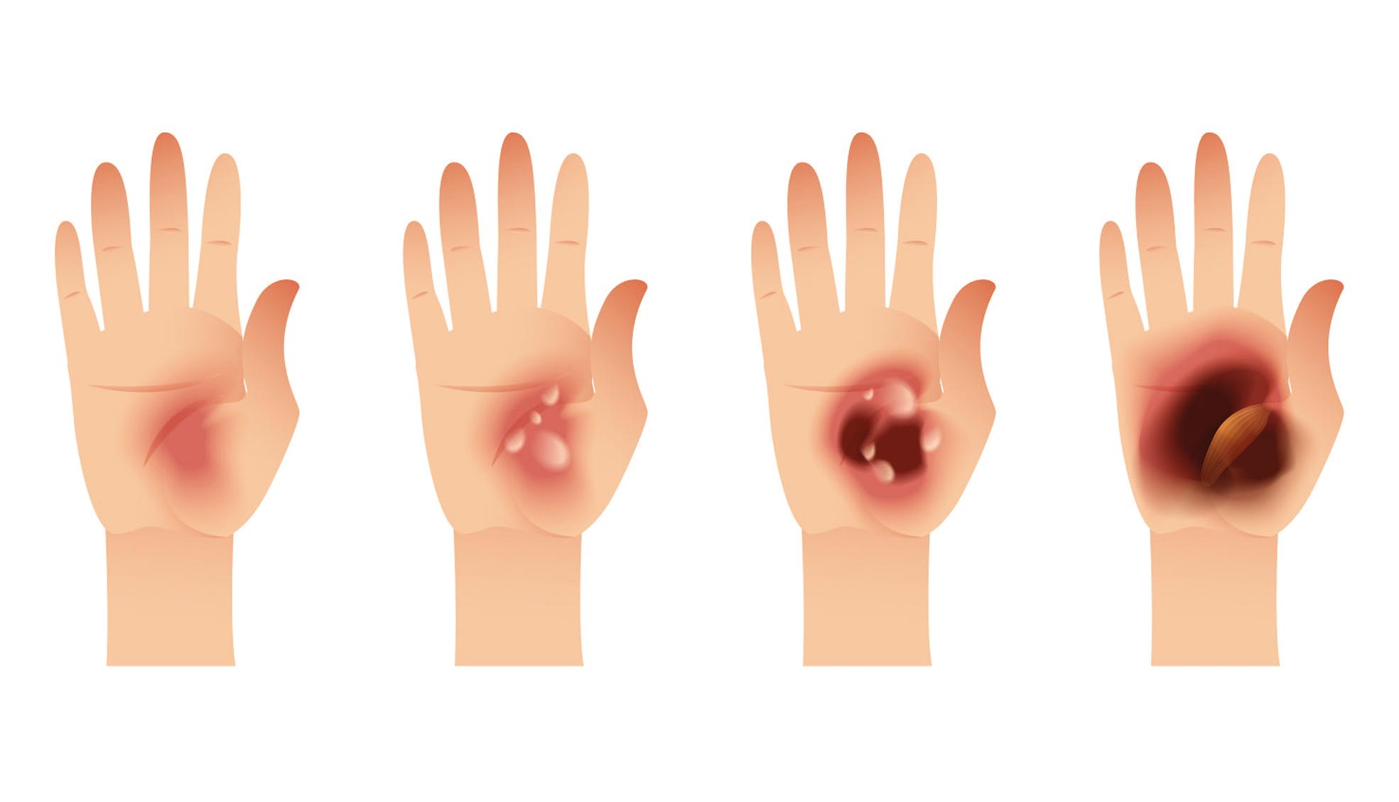 En caso de quemaduras, ¿qué hacer? | SkinNews Revista Dermocosmética