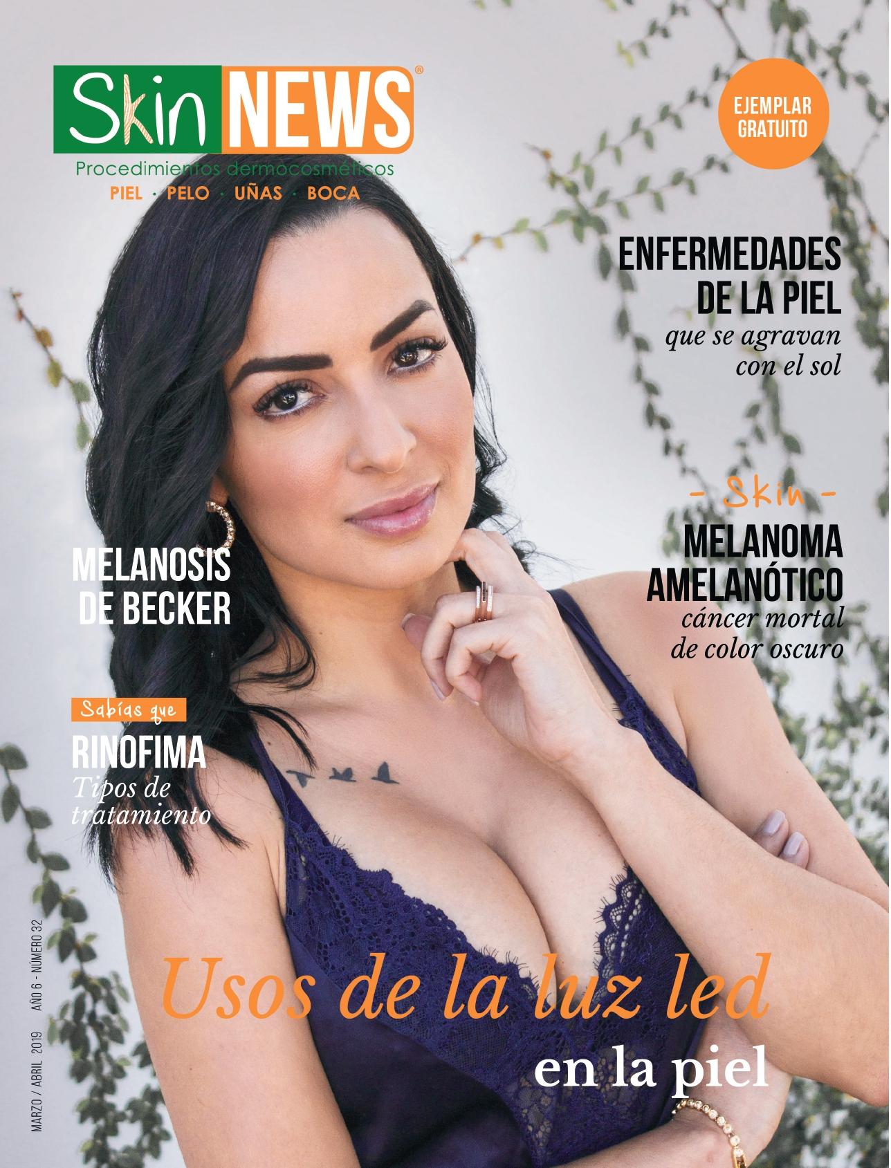 SkinNews Edición 32