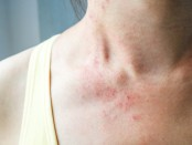 Young woman has skin rash itch on neck