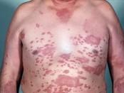 Lepra: estado actual, mes mundial