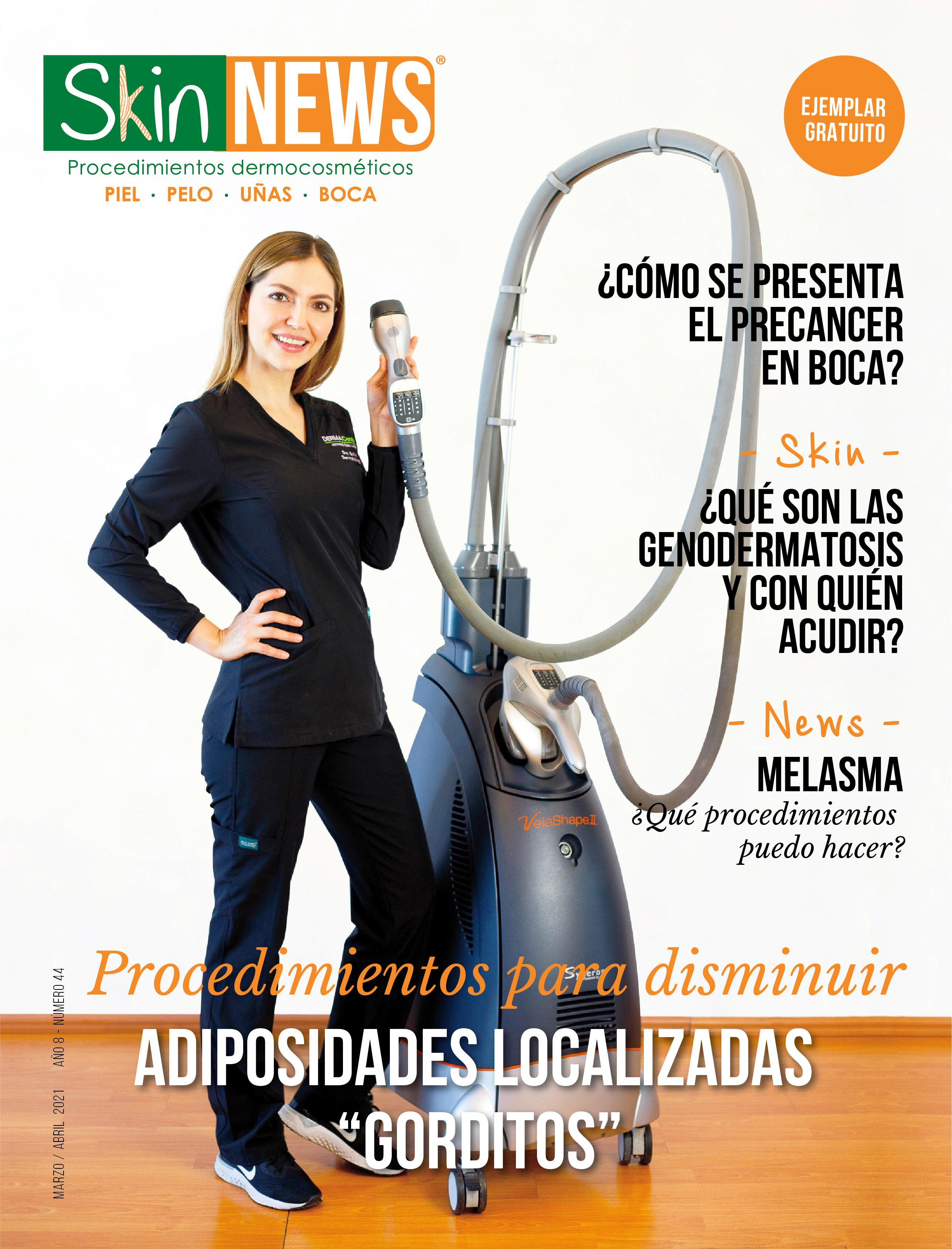 SkinNews Edición 44