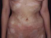 ¿Qué son los linfomas cutáneos?