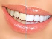 aliado-blanco-de-los-dientes