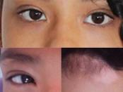 la-voz-vitiligo