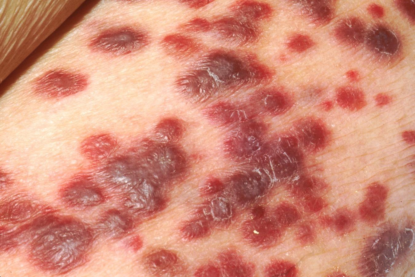 SARCOMA DE KAPOSI ¿sólo en pacientes con SIDA? | SkinNews Revista  Dermocosmética