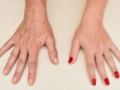 Quiero rejuvenecer mis manos. ¿Qué tratamientos puedo hacer?