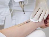 Retiro de tatuajes cosméticos con láser
